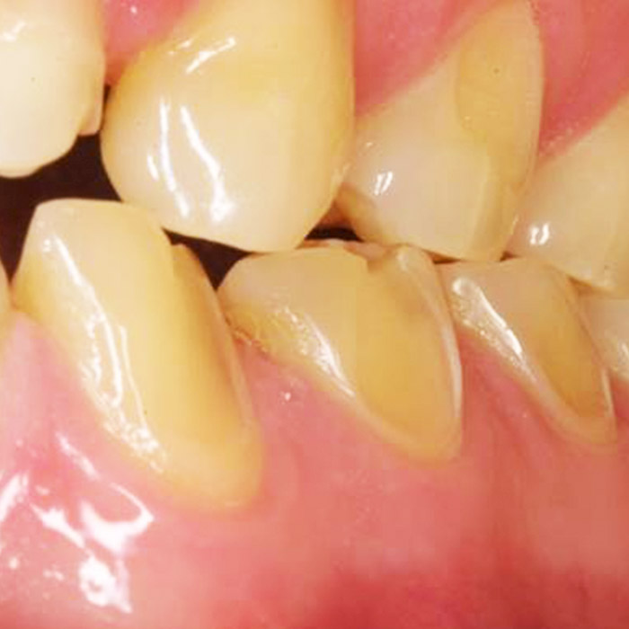 The-science-Behind-Dental-Erosion